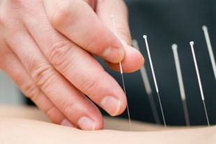 Acupuncture Benefits MN